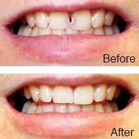 Cosmetic Dentistry - Dental Bonding