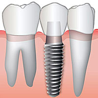 Our Dental Implant Services