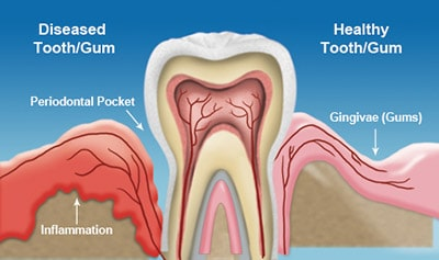 Gum Disease Diagram