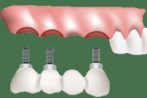 Dental Bridges - Dental Implant Bridge
