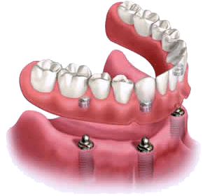 Dentures in Atlanta