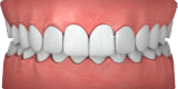 Invisalign® for Adults and Teens
