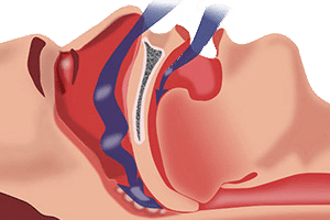 Sleep Apnea & Snoring Treatment