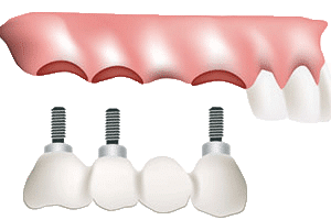 Dental Bridges - Dental Implant Bridge